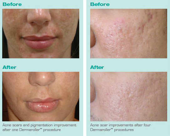 Treatment of Acne Scars with Dermaroller