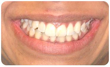 Invisible orthodontics in situ